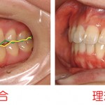 お子さんあるいはご自身の矯正歯科治療を考える時に