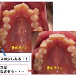 矯正歯科治療に抜歯は必要か?