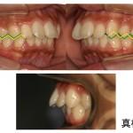 私の歯並び、子供の歯並び、これって問題ですか?!