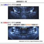 矯正治療と歯根吸収について